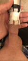 You see the head of my penis is already covered. When I take the mouthpiece off, I have about 1/4 loose foreskin over the head.